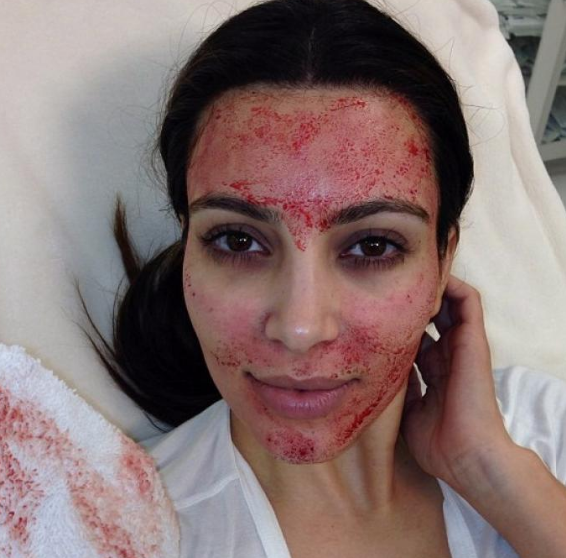Even Kim Kardashian puts her trust in the use of Vampire Facials!